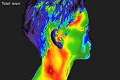 Thermogram.PNG