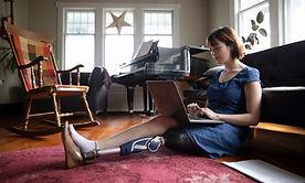 Женщина с Amputee с помощью ноутбука