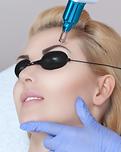 remover-pigmentos-de-uma-micropigmentaca