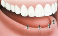 Implant_SupportDenture_Apex Dental_2.jpg