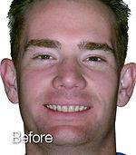 adam-before.jpg