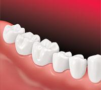 ImplantSupBridge-Apex Dental-3.jpg