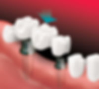 ImplantSupBridge-Apex Dental-2.jpg