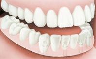 Implant_SupportDenture_Apex Dental_3.jpg
