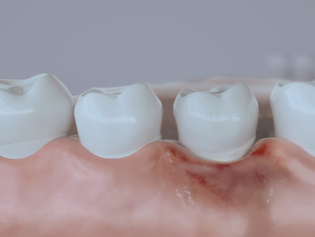 Periodontal Disease and treatments