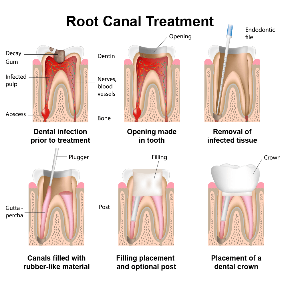 This image is quick standard illustration of steps involved in typical root canal.