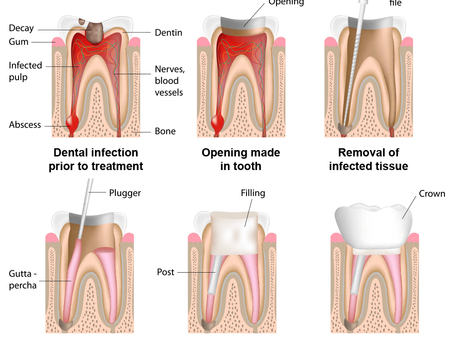 Copy of DENTAL EMERGENCY - ROOT CANAL THERAPY