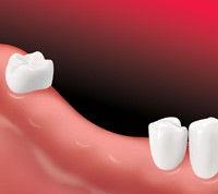 missing teeth.jpg