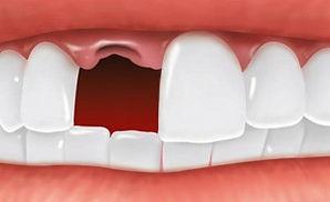 missing tooth.jpg