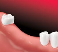 ImplantSupBridge-Apex Dental-1.jpg