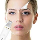 Ulftrasonic Facial ~ ultrasound technology for stimulation and repair Clarington, ON