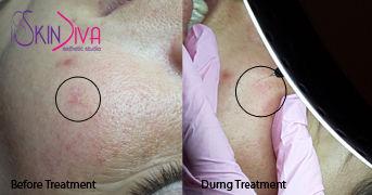 remove spider veins, broken capillaries, spa facial, oshawa, courtice, bowmanville, newcastle, durham