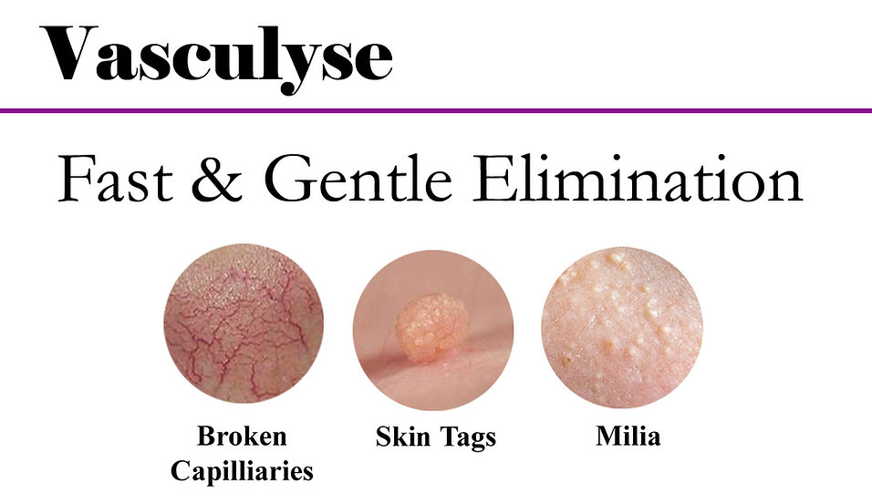Vasculyse for fast elimination of skin tags, broken capilliaries, milia, ruby points and more