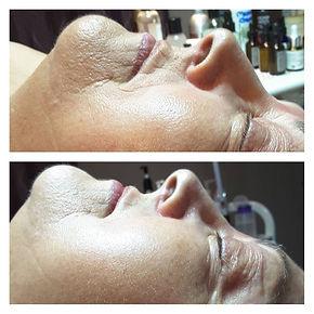Microneedling, dermal needling, wrinkle reduction in Courtice, ON