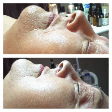 Reduction in fine lines around the mouth and overall firmness