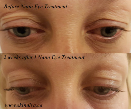 Reduction in fine lines while firming the eye area.
