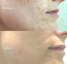 Microneedling, derma roller, collagen induction therapy, scarring, pigmentation,  fine lines, wrinkles,  courtice, durham, bowmanville, oshawa