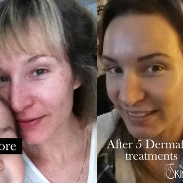 Glowing smooth blemish free skin. After a series of 5 treatments