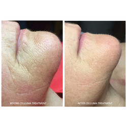 Skin firming with LED light