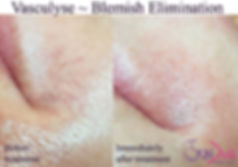 Quick and affordable elimination of Broken Capillaries Courtice, ON