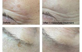 age spots, sun spots, hyperpigmentation removal, courtice, day spa, durham, clarington