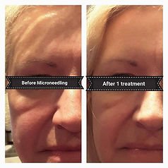 microneedling, collagen induction therapy, dermalneedling