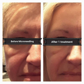After 1 treatment client received overall firmness and reduction in puffiness around the eye area