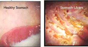 AN UPDATE ON STOMACH ULCERS