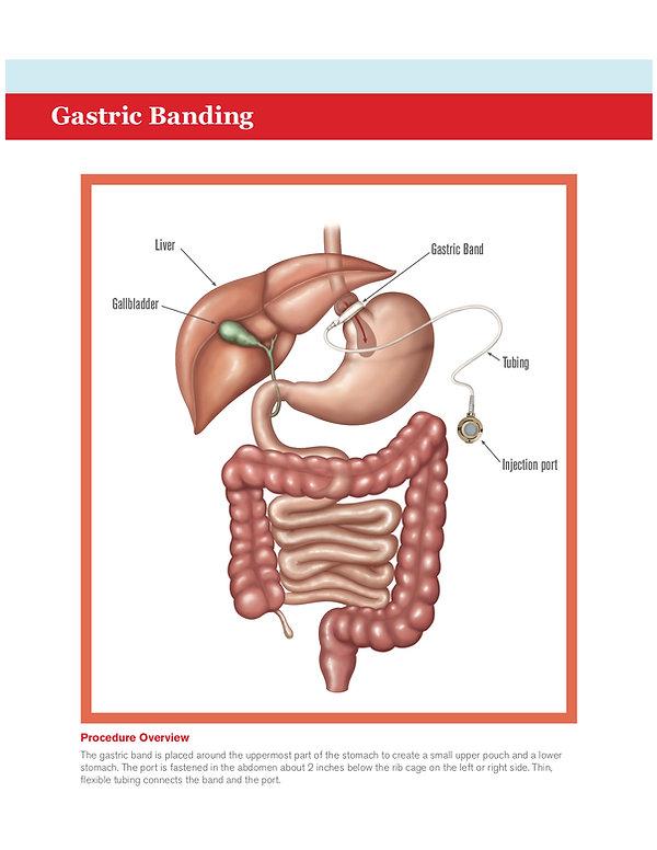 gastric banding pic.jpg