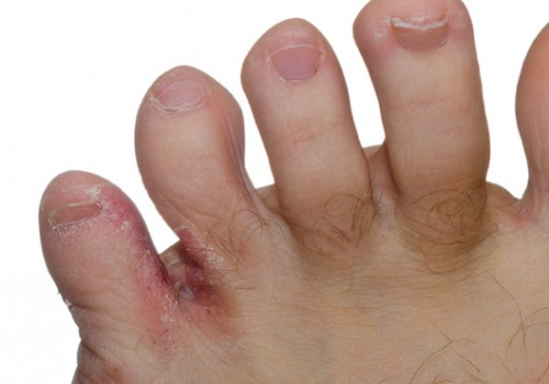 athletes-foot-fungus-307mwgps0p8c1er4rp9zb4