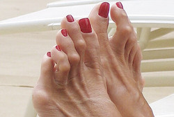diabetes_foot_problems_s13_hammertoes
