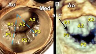 Cirurgia da válvula mitral e a formação de novas habilidades: aspecto histórico
