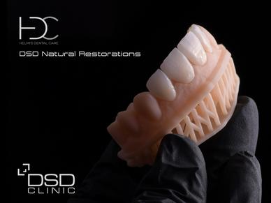 DSD Natural Restorations