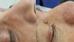 Diferentes aspectos do Câncer de pele