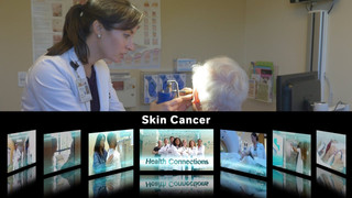 HEALTH CONNECTIONS / SKIN CANCER