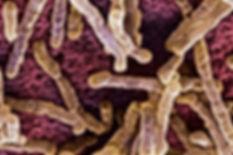 candidiasis-intestinal-900x600.jpg