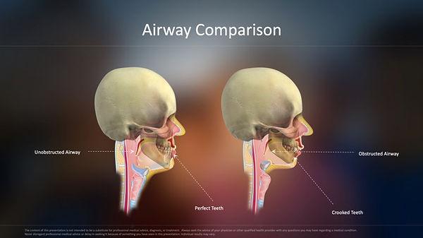 Airway Comparison.jpg