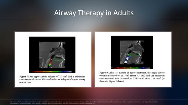 Airway Therapy in Adults.jpg