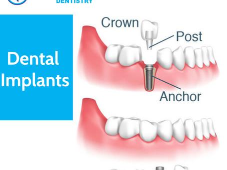Dental Implants: Need, Types, Procedure, Cost | DrVinishaPandeyDentistry