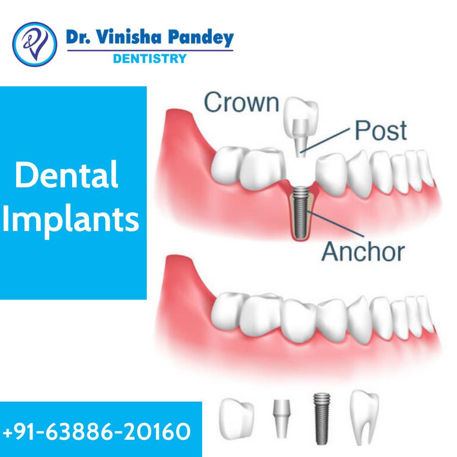 Detail of Dental Implants