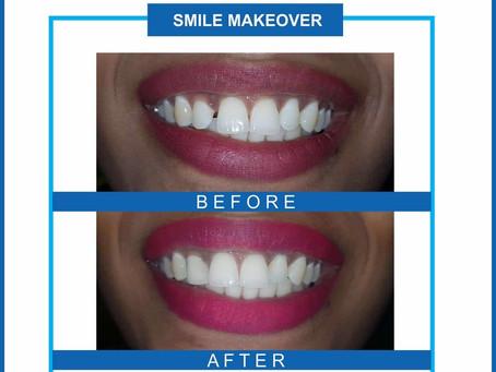 What is Smile Makeover? - Dr. Vinisha Pandey Dentistry