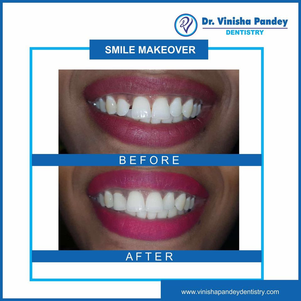 Best Smile Makeover Treatment in Kanpur