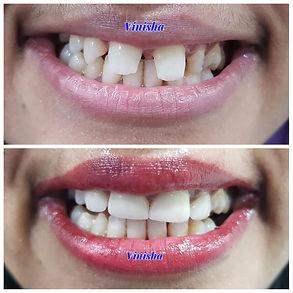 Smilemakeover Dr Vinisha Pandey Dentistr