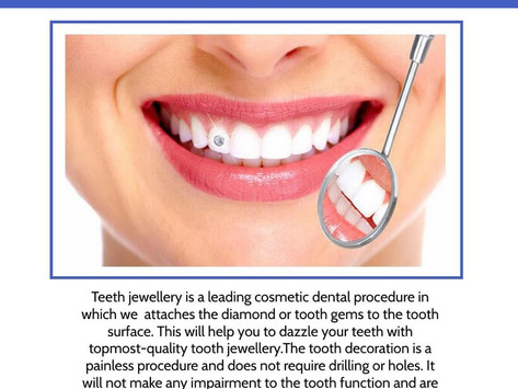 What are tooth gems? Pros of Tooth Jewels - Dr. Vinisha Pandey Dentistry