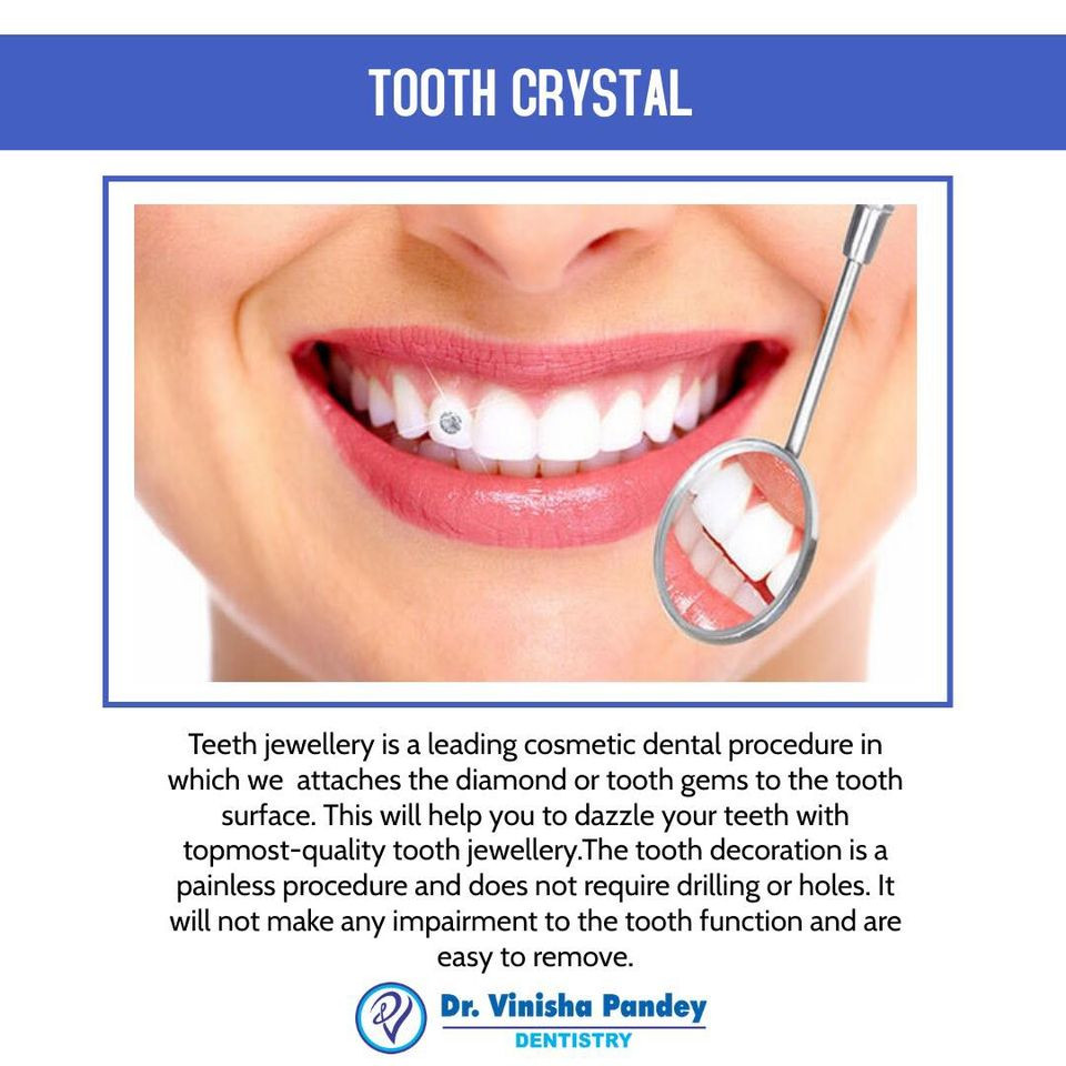 Best Tooth Gems Treatment in Kanpur