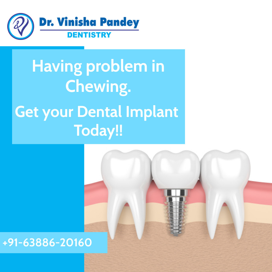Why should you get an Dental Implant