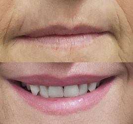 Before and after lip tattoo.JPG