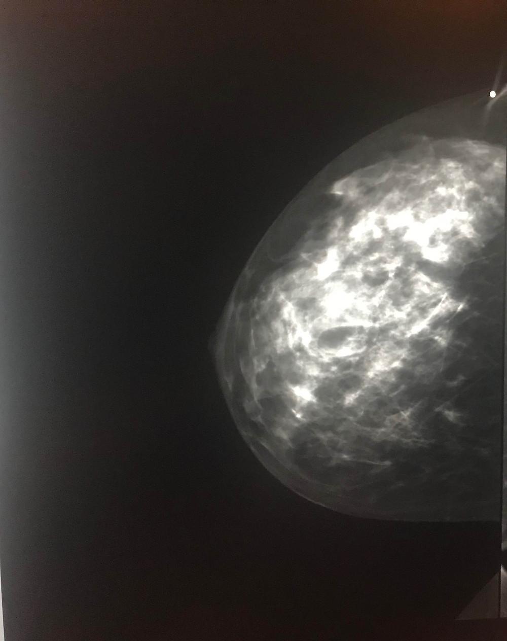 Mammogram Imaging | Cancer's A Bitch