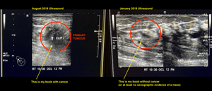 Breast Ultrasound Imaging | Cancer's A Bitch