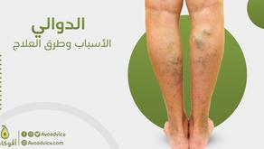 الدوالي   أعراضها وأسبابها وعلاجها الجذري   خلال أسبوع واحد فقط   حصريًا في المغرب